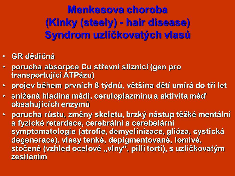 Menkesova choroba (Kinky (steely) - hair disease) Syndrom uzlíčkovatých vlasů