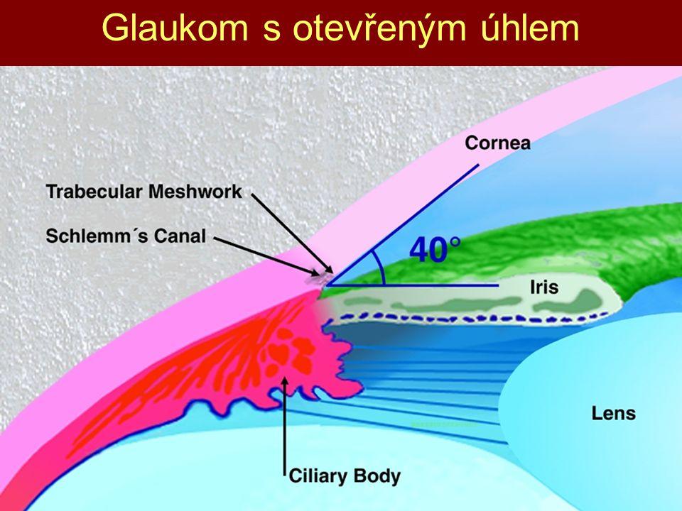 Glaukom s otevřeným úhlem