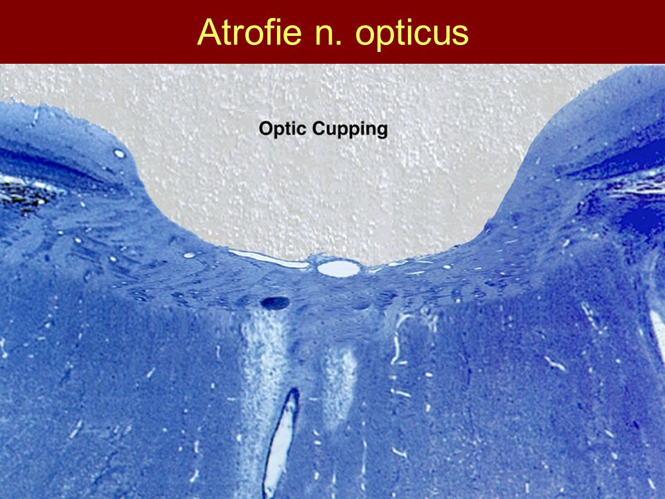 Atrofie n. opticus