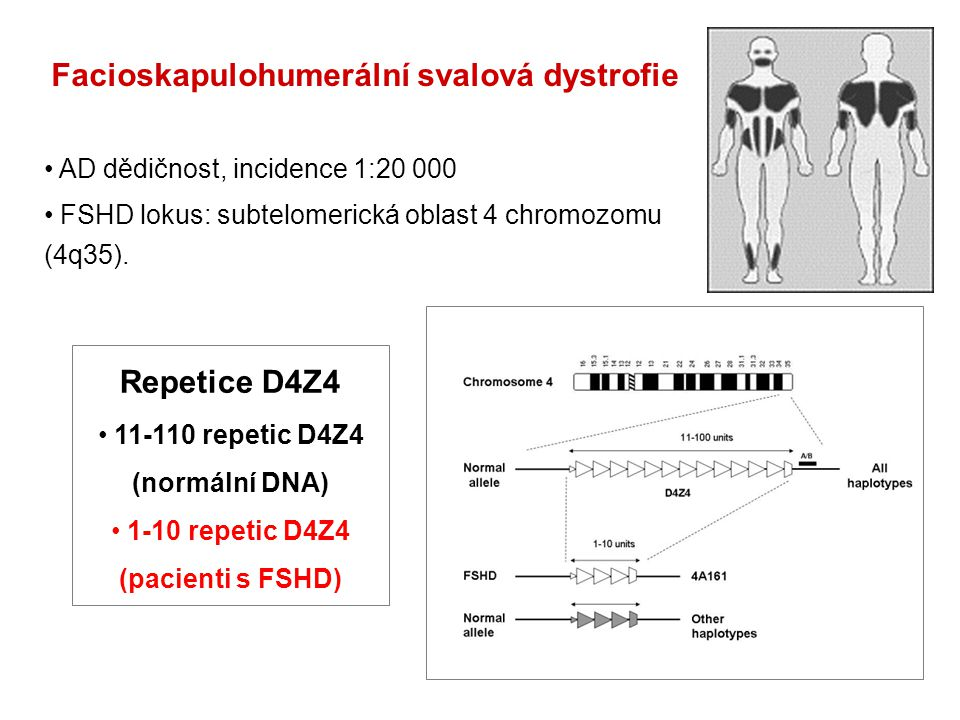 Facioskapulohumerální svalová dystrofie