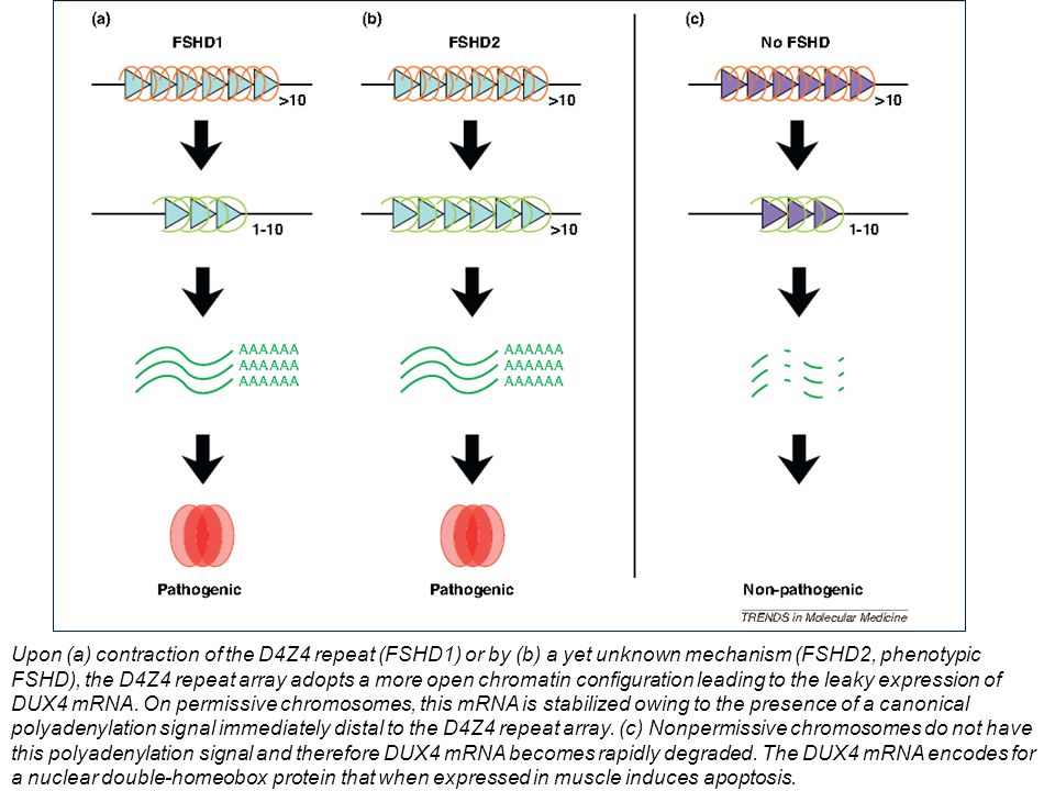 Upon (a) contraction of the D4Z4 repeat (FSHD1) or by (b) a yet unknown mechanism (FSHD2, phenotypic FSHD), the D4Z4 repeat array adopts a more open chromatin configuration leading to the leaky expression of DUX4 mRNA.