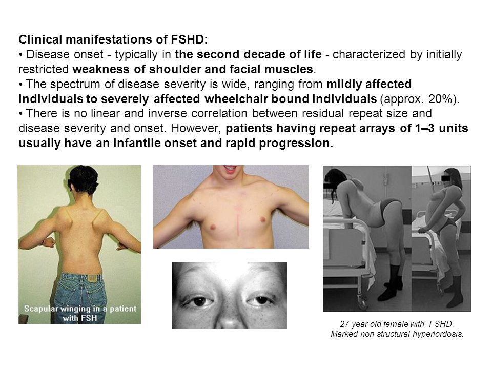 27-year-old female with FSHD. Marked non-structural hyperlordosis.