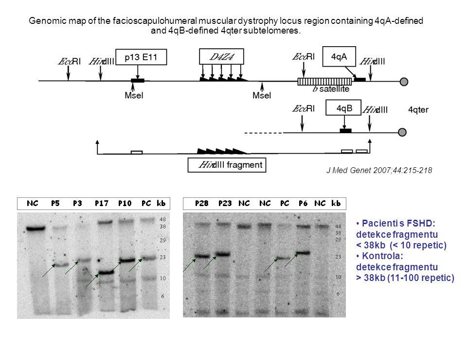 Pacienti s FSHD: detekce fragmentu < 38kb (< 10 repetic)