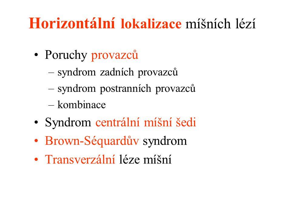 Horizontální lokalizace míšních lézí