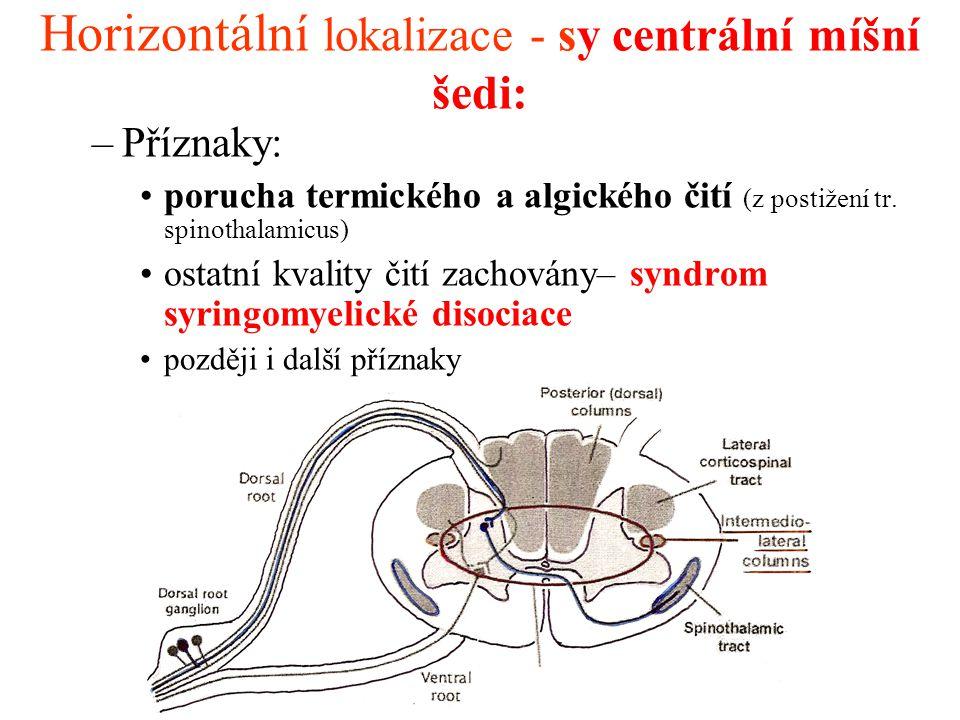 Horizontální lokalizace - sy centrální míšní šedi: