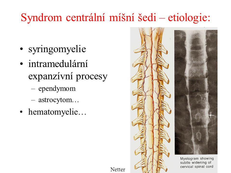 Syndrom centrální míšní šedi – etiologie: