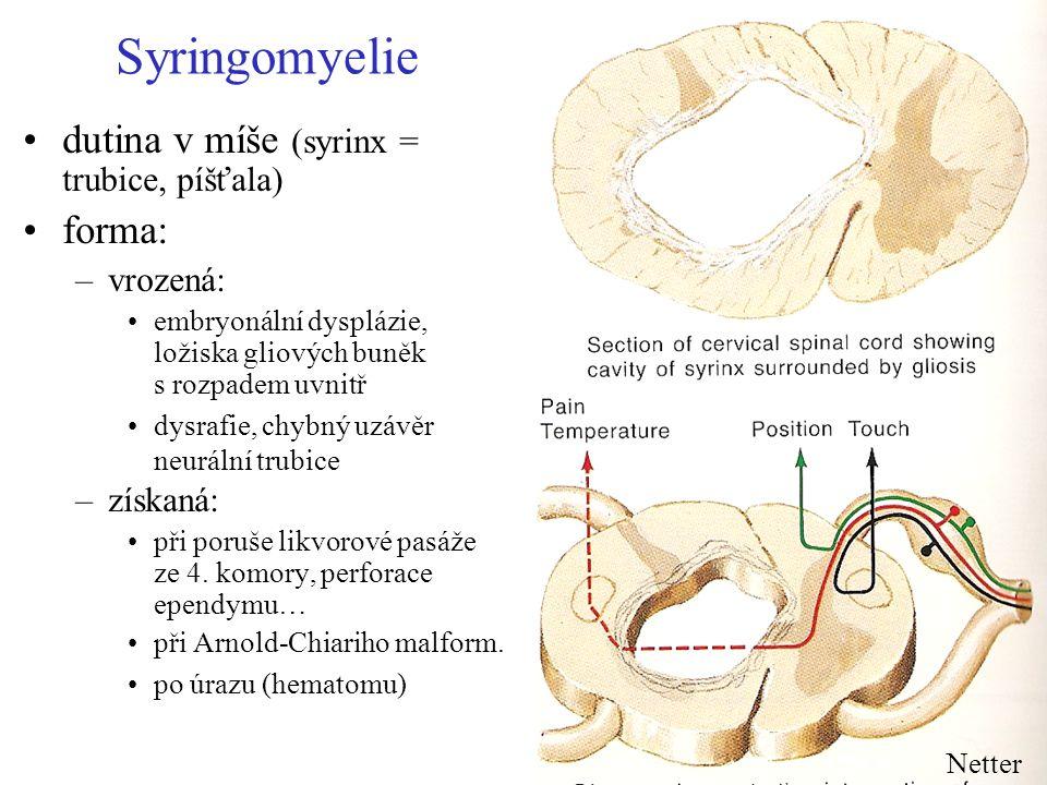 Syringomyelie dutina v míše (syrinx = trubice, píšťala) forma: