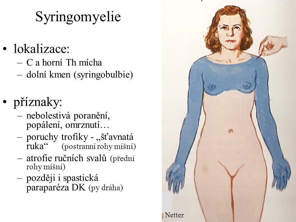 Syringomyelie lokalizace: příznaky: C a horní Th mícha