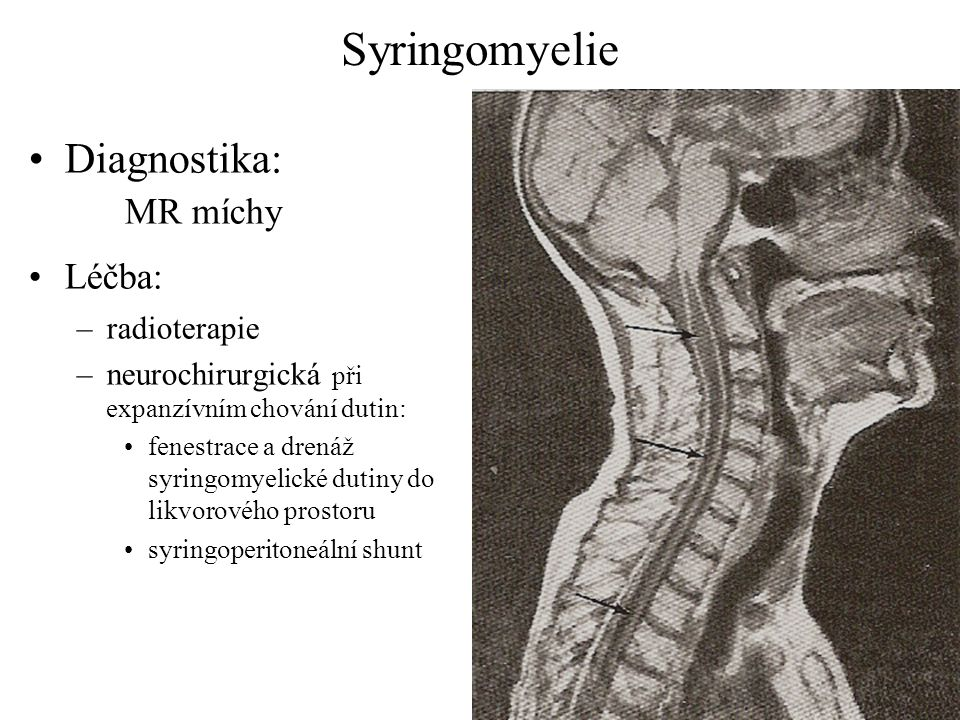 Syringomyelie Diagnostika: MR míchy Léčba: radioterapie