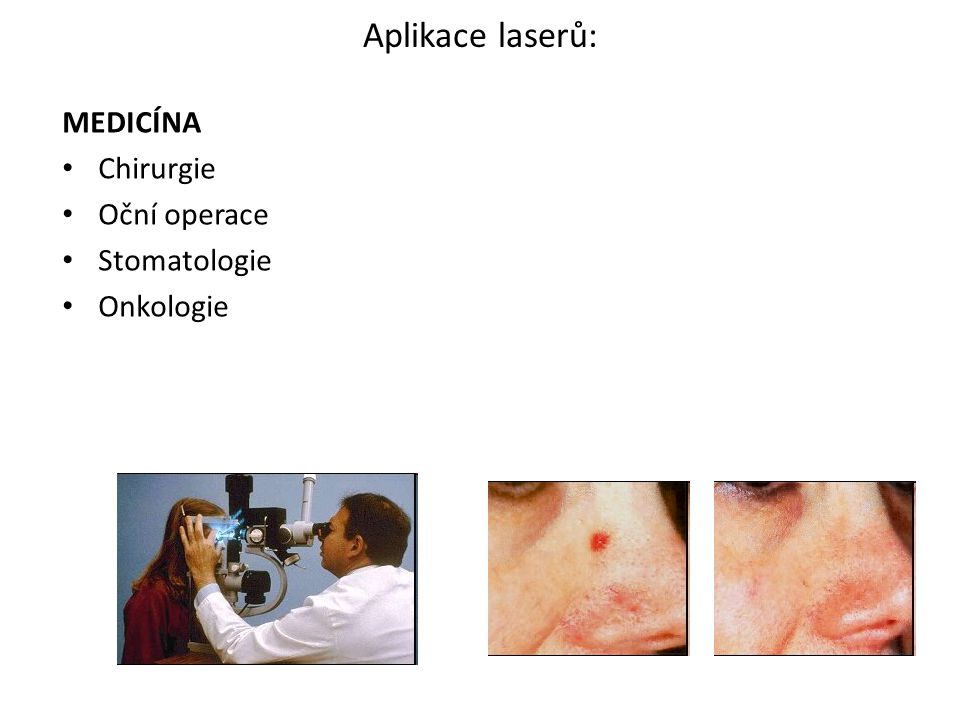 Aplikace laserů: MEDICÍNA Chirurgie Oční operace Stomatologie