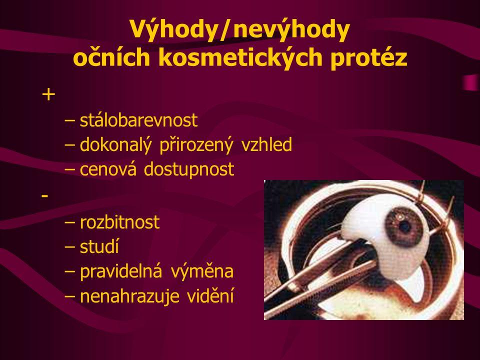 Výhody/nevýhody očních kosmetických protéz