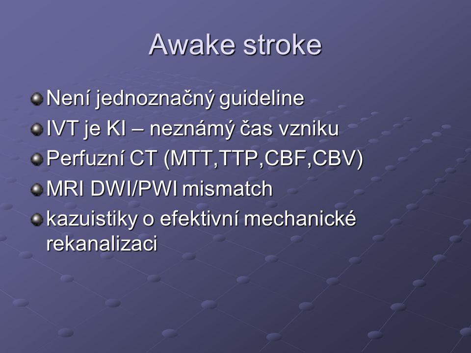Awake stroke Není jednoznačný guideline IVT je KI – neznámý čas vzniku