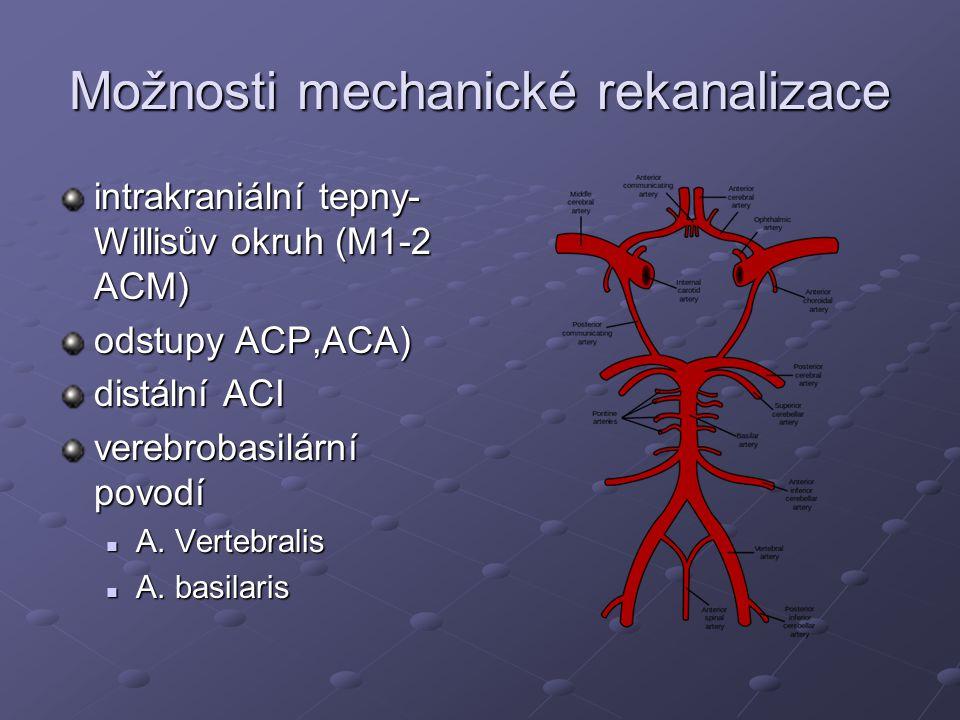 Možnosti mechanické rekanalizace