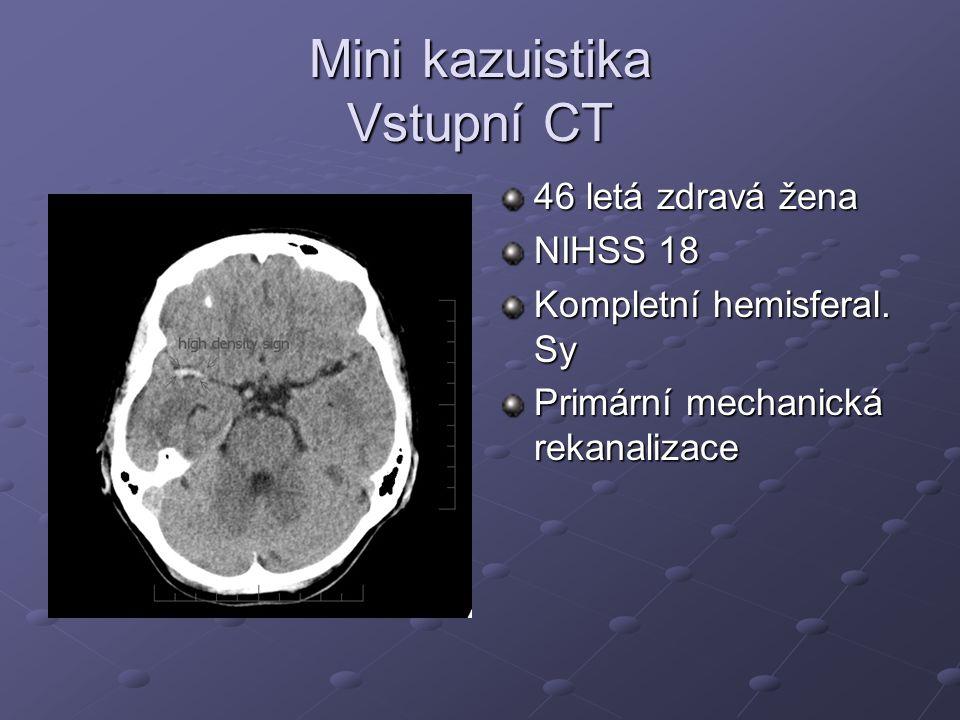 Mini kazuistika Vstupní CT