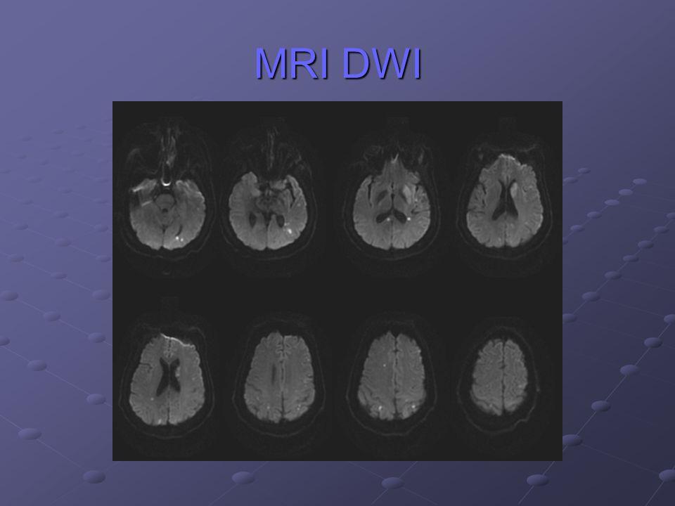 MRI DWI