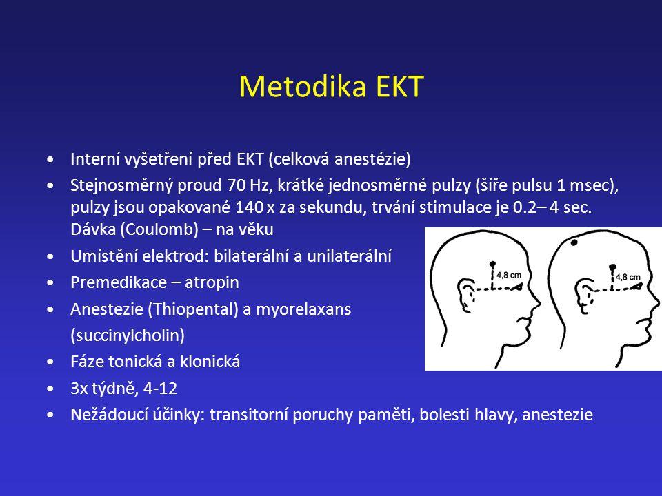 Metodika EKT Interní vyšetření před EKT (celková anestézie)