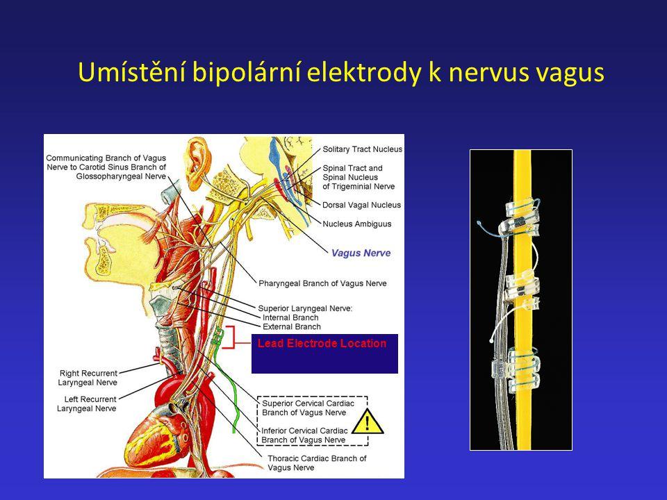 Umístění bipolární elektrody k nervus vagus