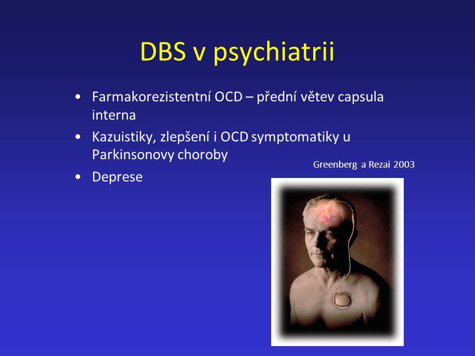 DBS v psychiatrii Farmakorezistentní OCD – přední větev capsula interna. Kazuistiky, zlepšení i OCD symptomatiky u Parkinsonovy choroby.