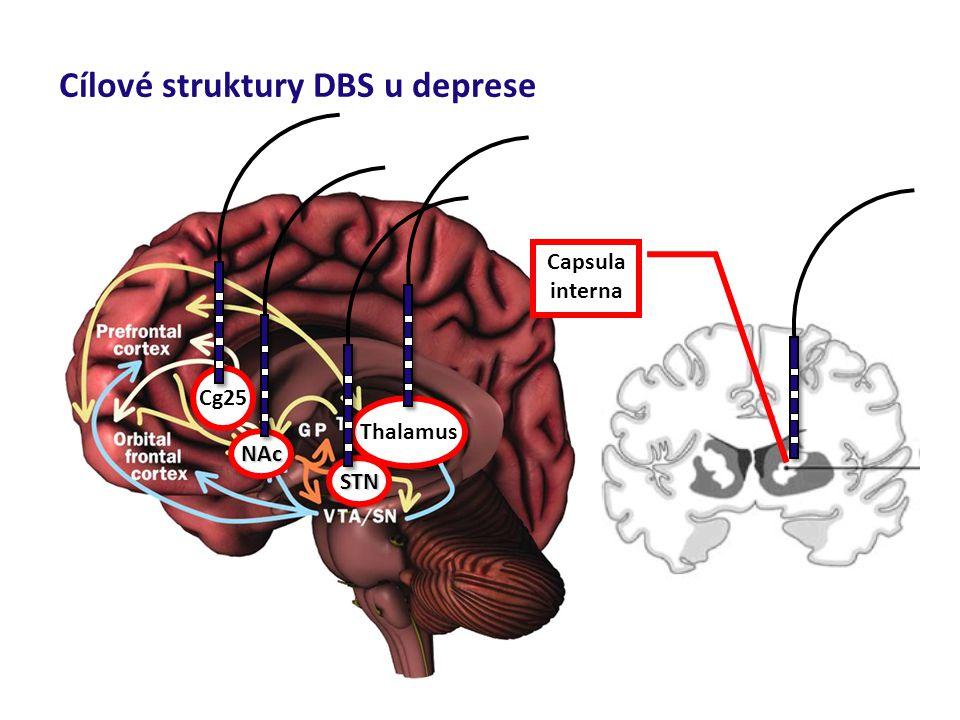 Cílové struktury DBS u deprese