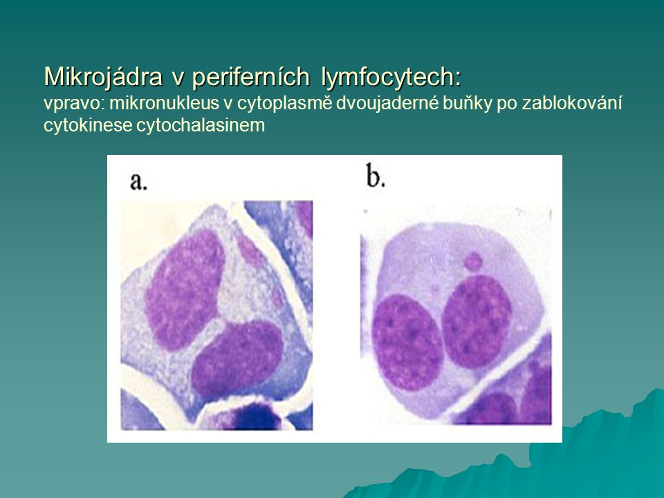 Mikrojádra v periferních lymfocytech: vpravo: mikronukleus v cytoplasmě dvoujaderné buňky po zablokování cytokinese cytochalasinem