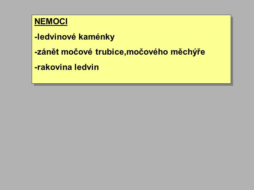 NEMOCI -ledvinové kaménky -zánět močové trubice,močového měchýře -rakovina ledvin