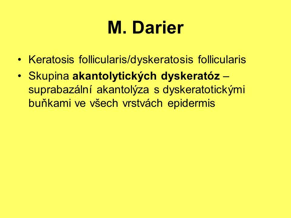 M. Darier Keratosis follicularis/dyskeratosis follicularis