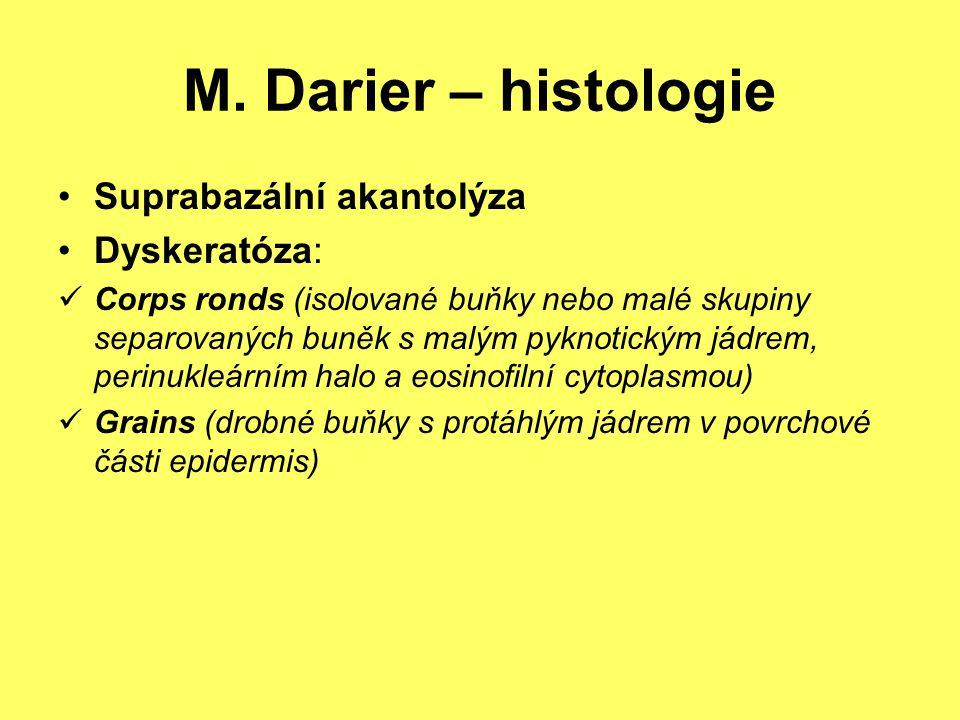 M. Darier – histologie Suprabazální akantolýza Dyskeratóza: