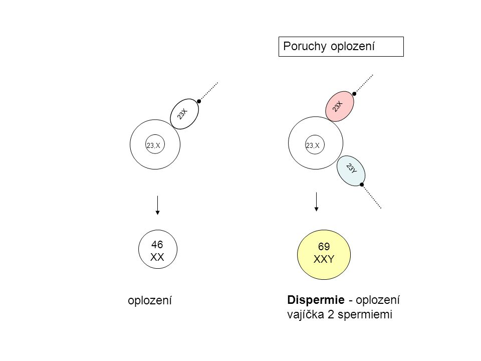 Dispermie - oplození vajíčka 2 spermiemi