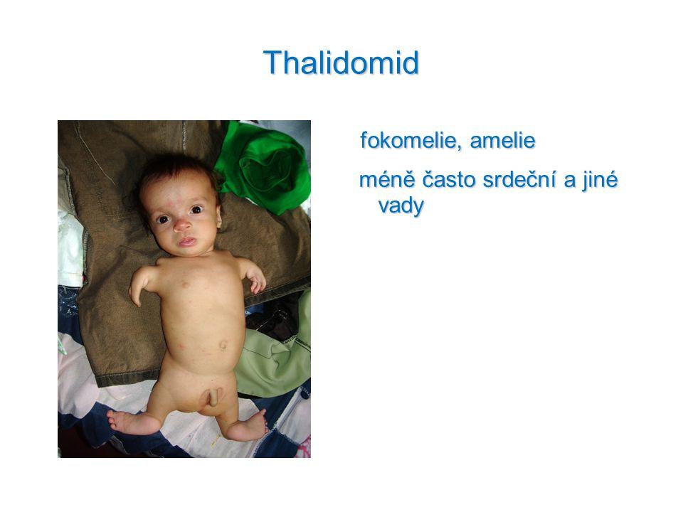 Thalidomid fokomelie, amelie méně často srdeční a jiné vady