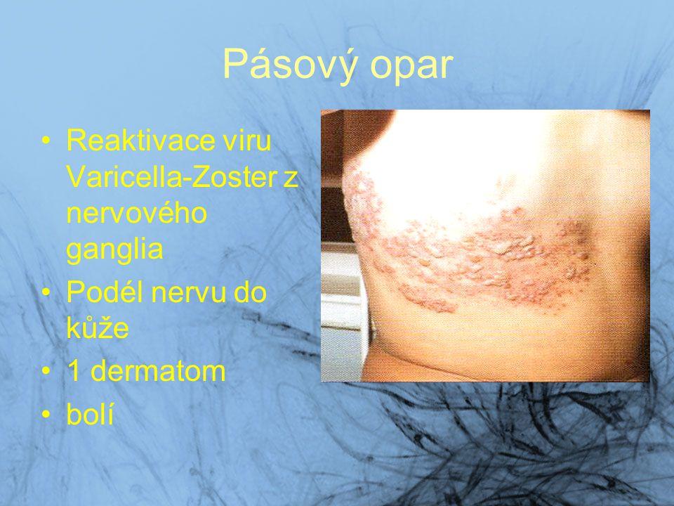 Pásový opar Reaktivace viru Varicella-Zoster z nervového ganglia