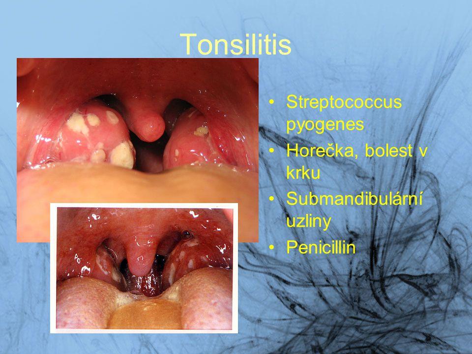 Tonsilitis Streptococcus pyogenes Horečka, bolest v krku