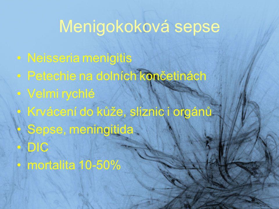 Menigokoková sepse Neisseria menigitis Petechie na dolních končetinách