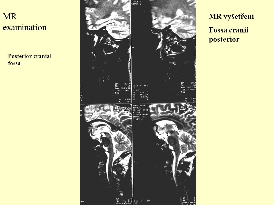 MR examination MR vyšetření Fossa cranii posterior