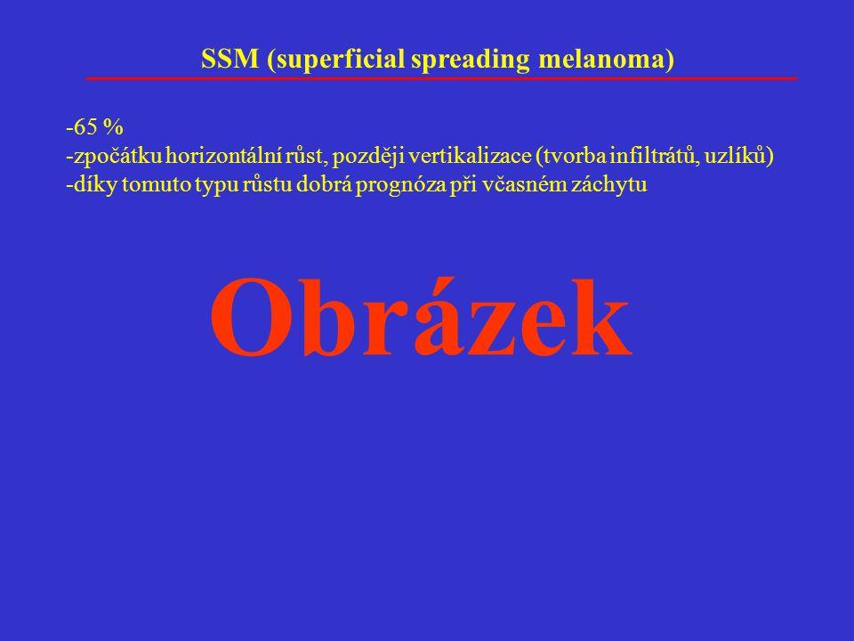 Obrázek SSM (superficial spreading melanoma) -65 %