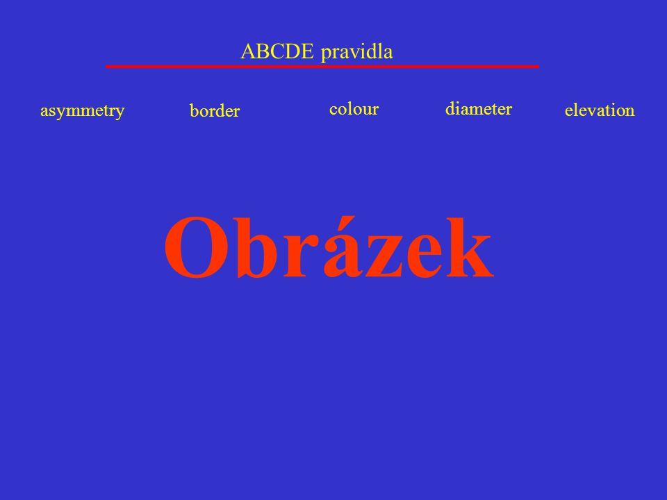 ABCDE pravidla asymmetry border colour diameter elevation Obrázek