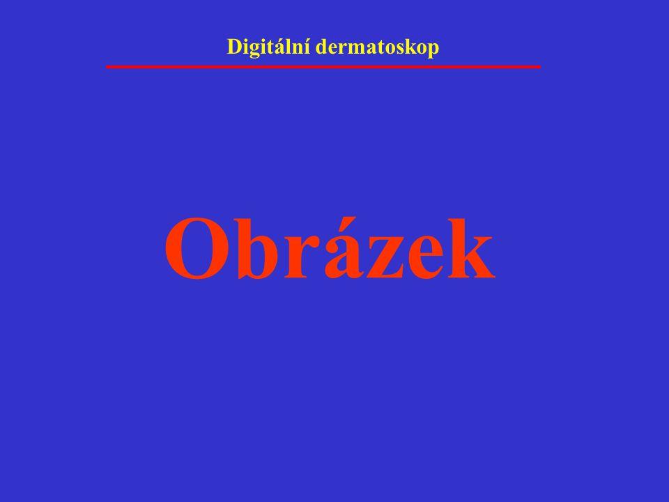 Digitální dermatoskop