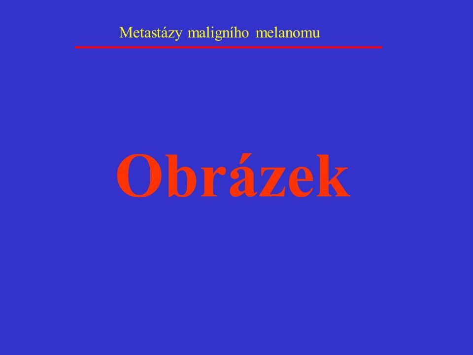 Metastázy maligního melanomu