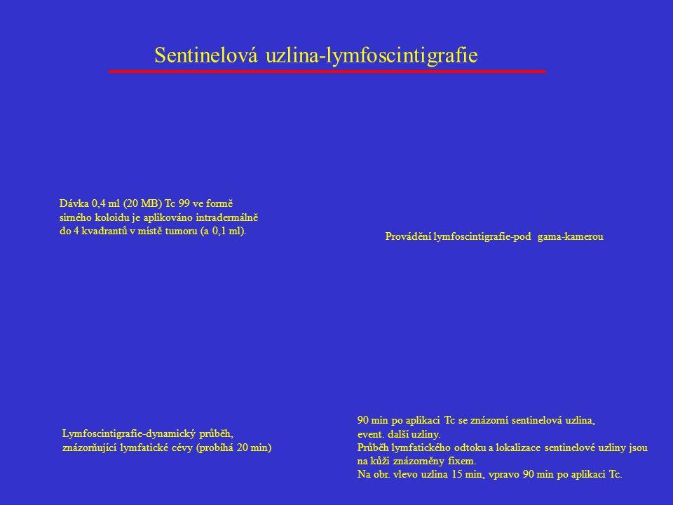 Sentinelová uzlina-lymfoscintigrafie