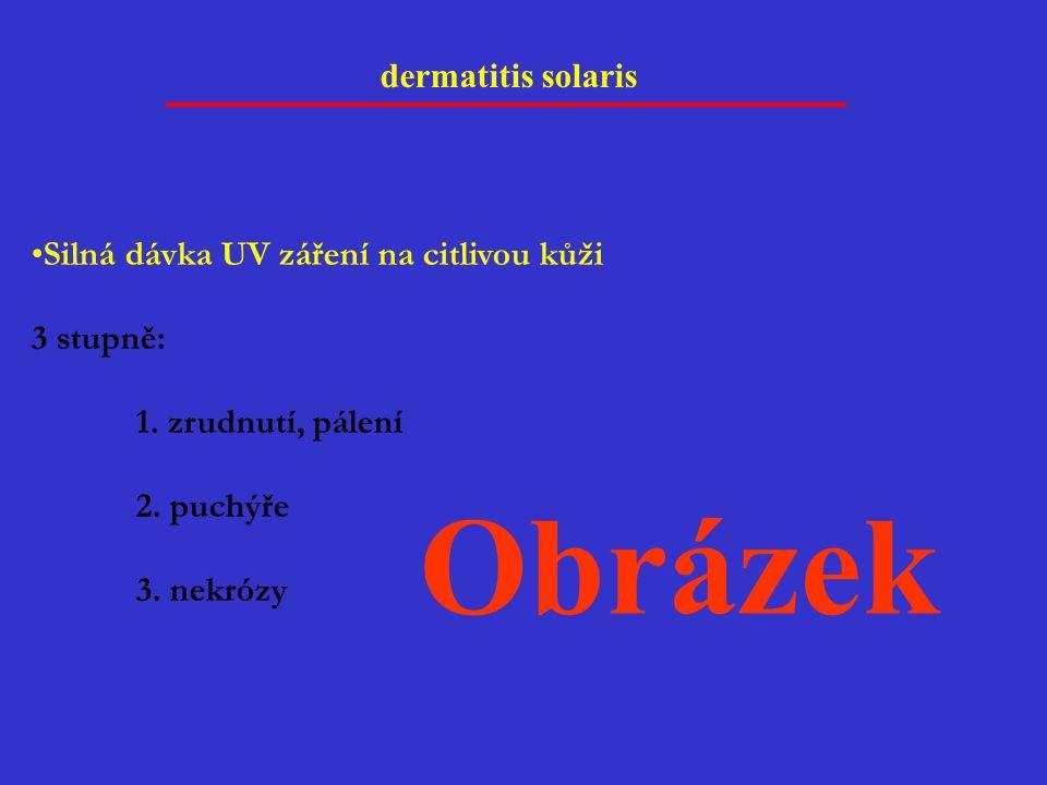 Obrázek dermatitis solaris Silná dávka UV záření na citlivou kůži
