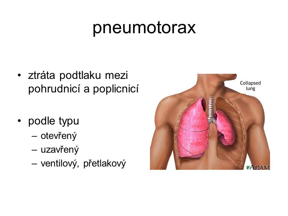 pneumotorax ztráta podtlaku mezi pohrudnicí a poplicnicí podle typu