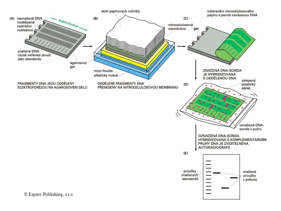 Detekce specifického fragmenu kapilárním přenosem a hybridizací (Southern blotting)