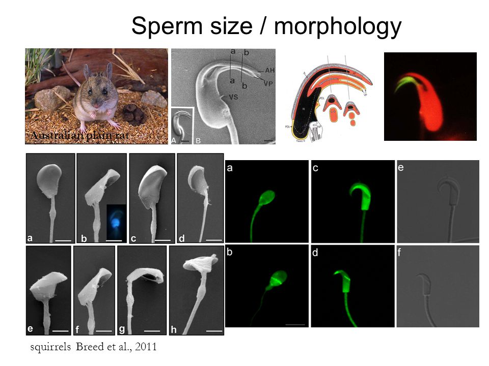 Sperm size / morphology