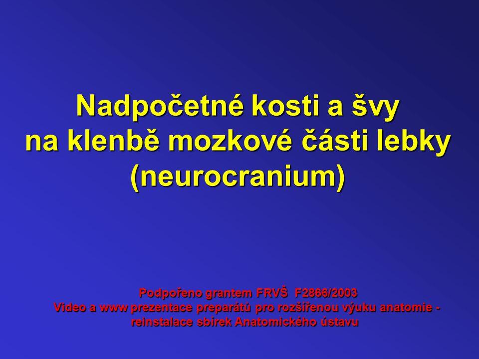 Nadpočetné kosti a švy na klenbě mozkové části lebky (neurocranium)