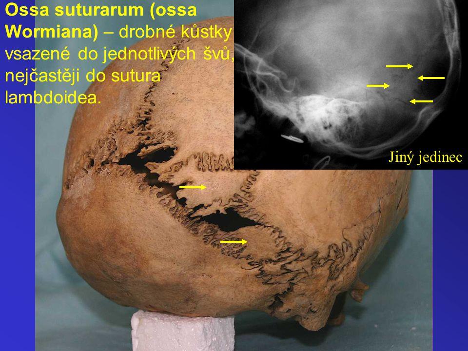 Ossa suturarum (ossa Wormiana) – drobné kůstky vsazené do jednotlivých švů, nejčastěji do sutura lambdoidea.