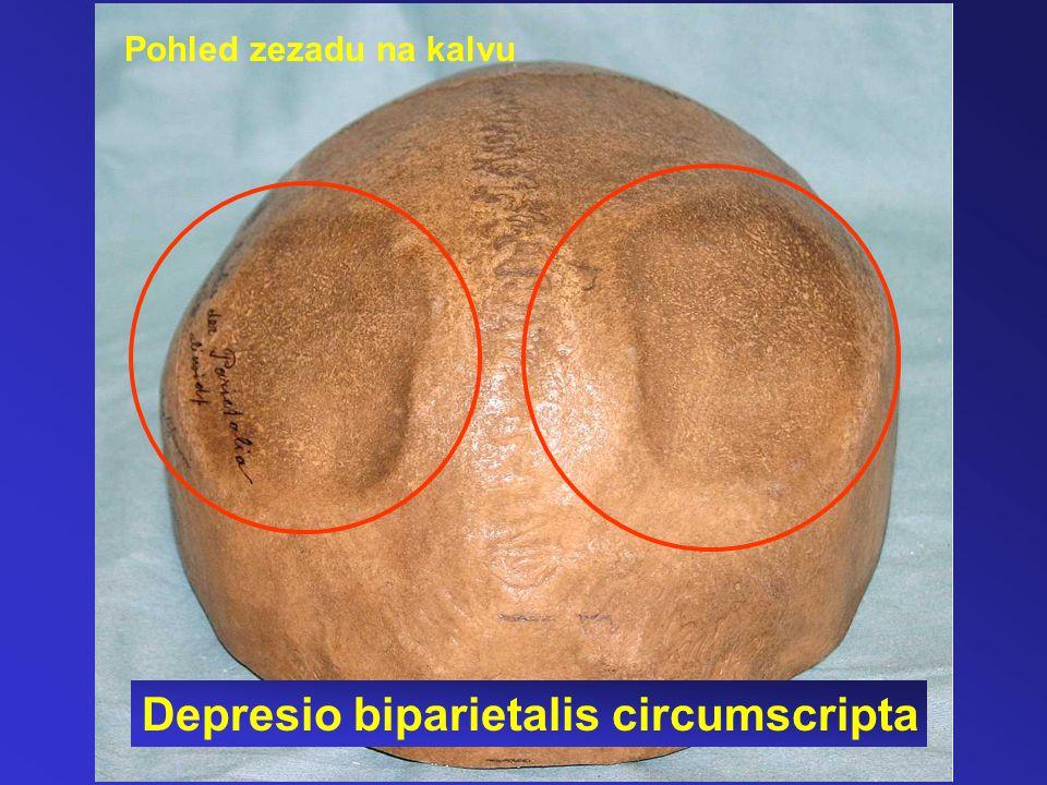 Depresio biparietalis circumscripta