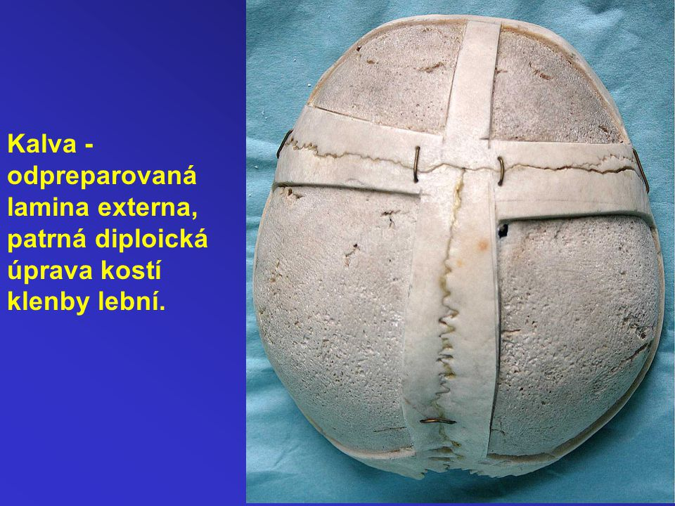 Kalva - odpreparovaná lamina externa, patrná diploická úprava kostí klenby lební.