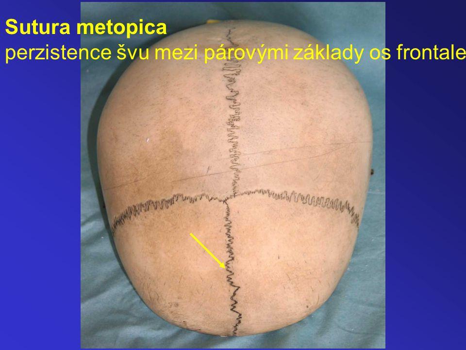 Sutura metopica perzistence švu mezi párovými základy os frontale