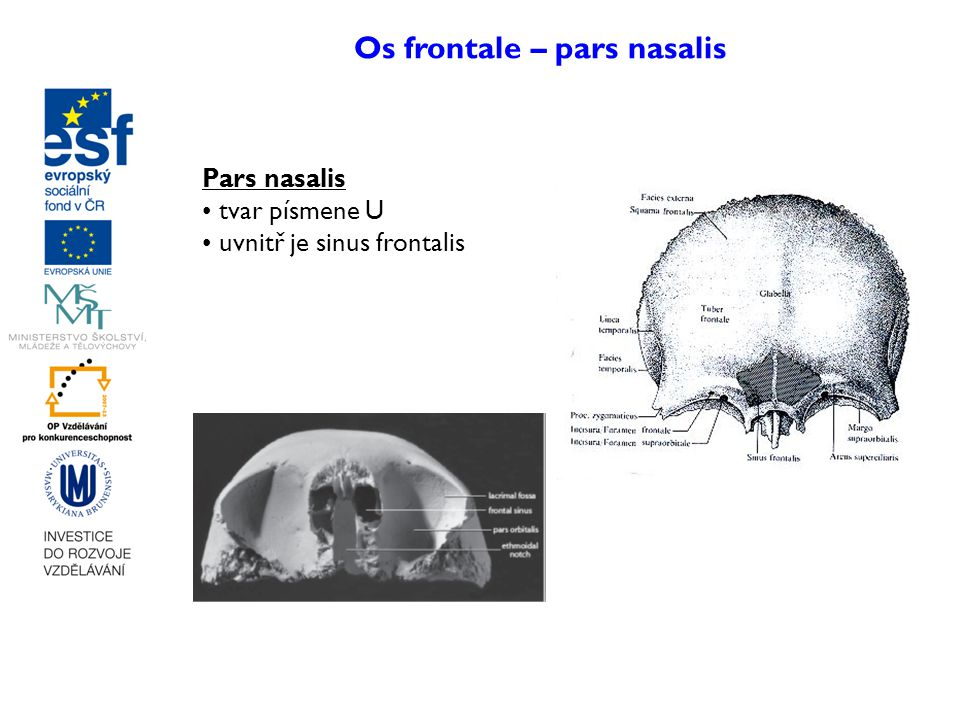 Os frontale – pars nasalis