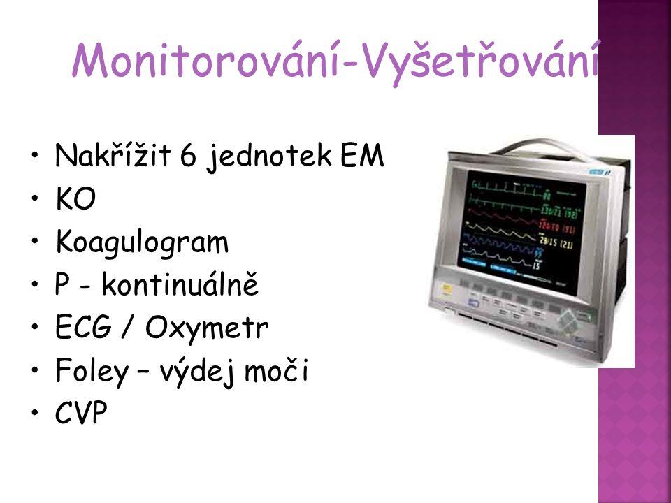 Monitorování-Vyšetřování
