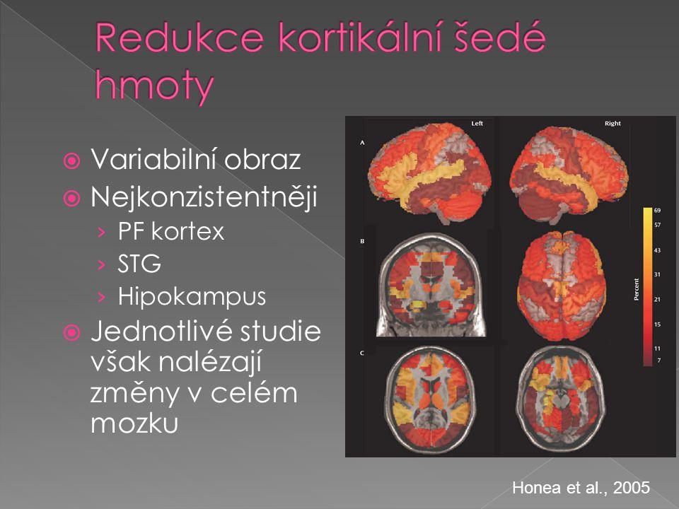 Redukce kortikální šedé hmoty